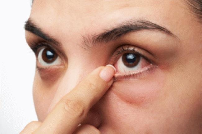 Le glaucome : une maladie oculaire désagréable